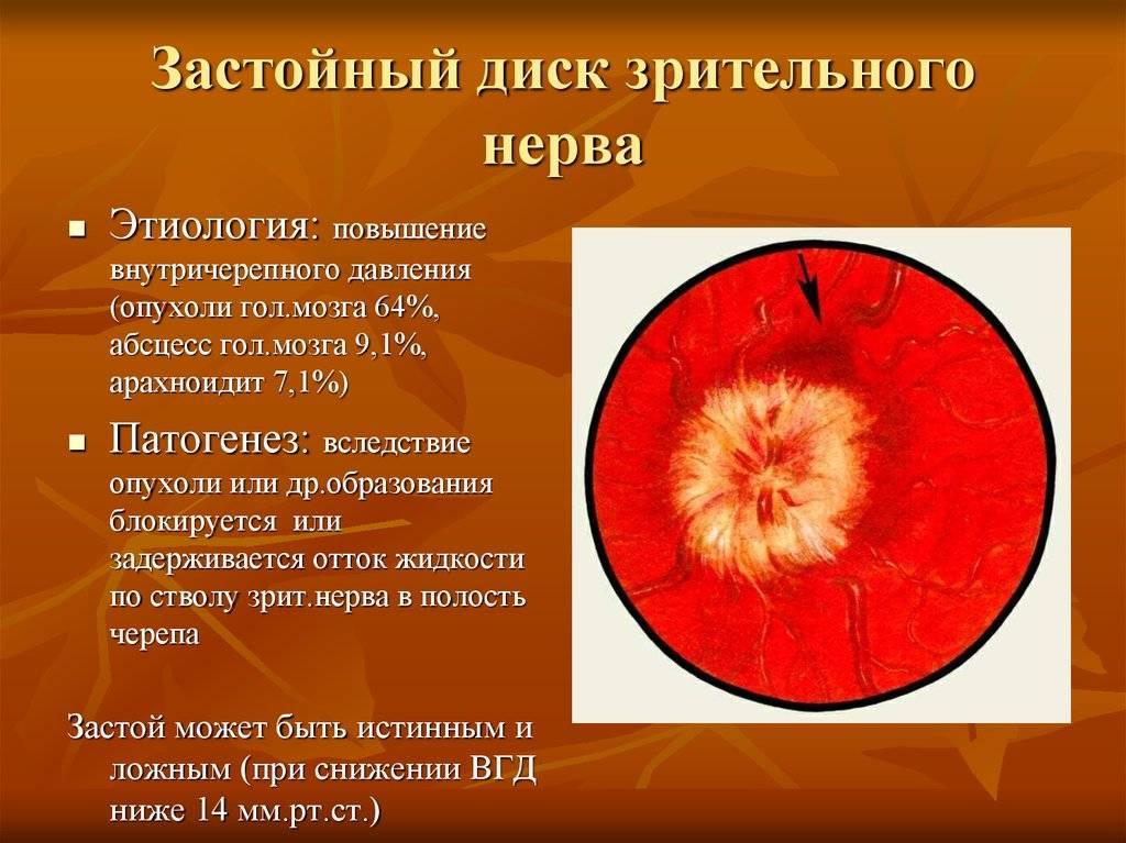 Застойный диск зрительного нерва: причины, симптомы и лечение