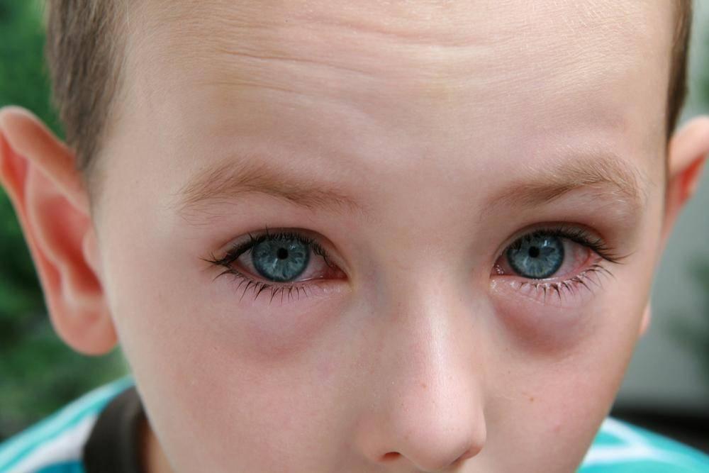 Конъюнктивит у детей: симптомы, признаки и лечение, как начинается и выглядит заболевание на фото