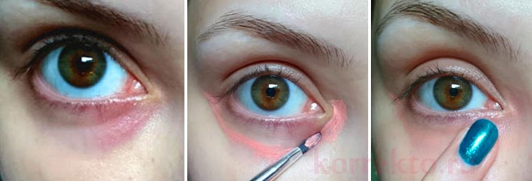 Как правильно замазать синяки под глазами: дельные рекомендации для всех!