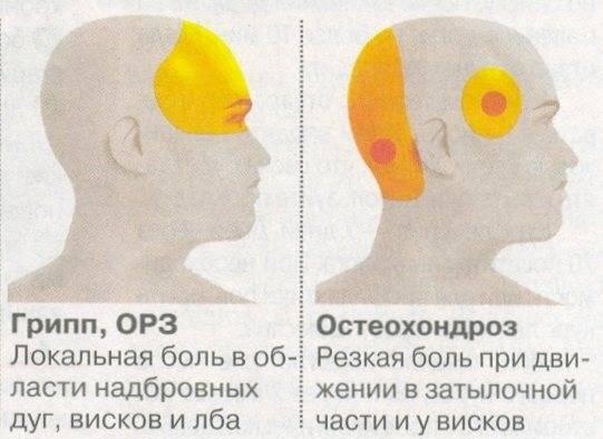 Невыносимая головная боль в области лба и глаз: природа и симптомы