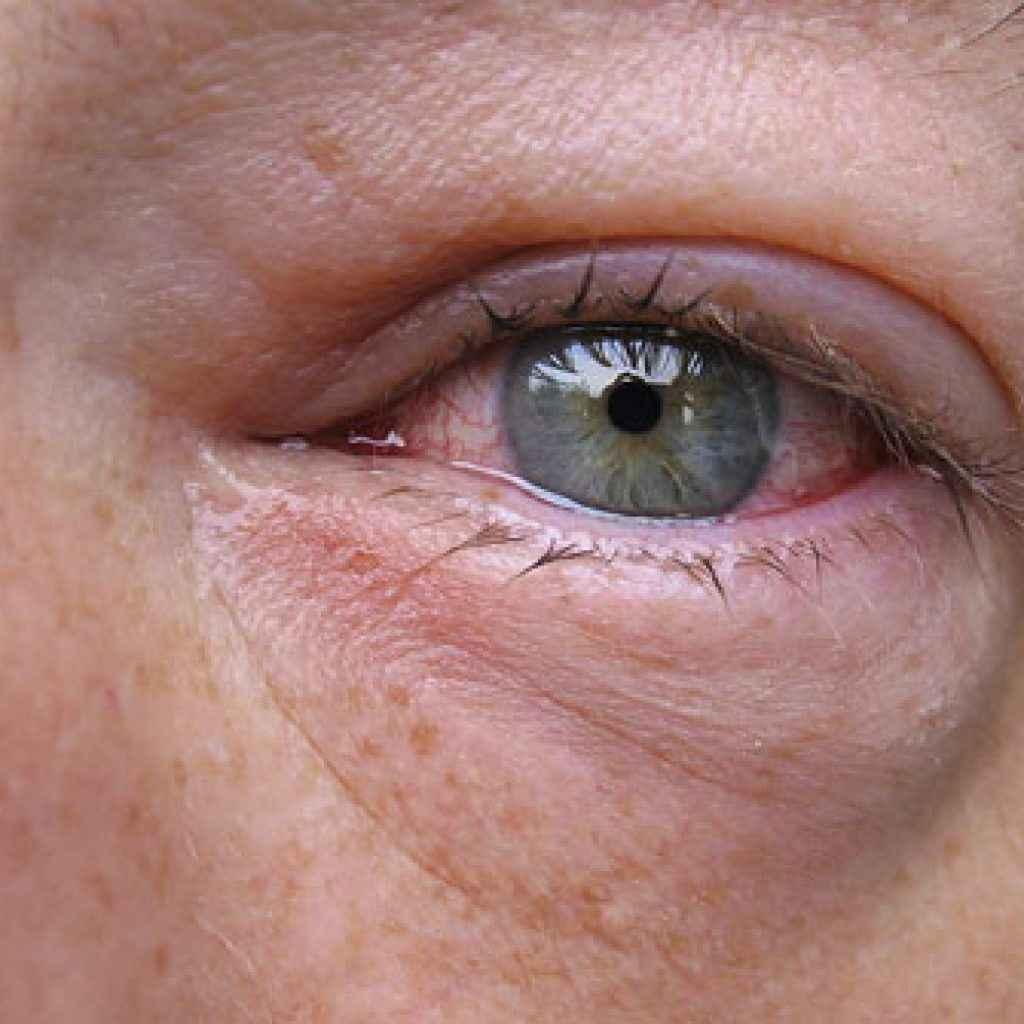 Почему щиплет глаза: возможные причины