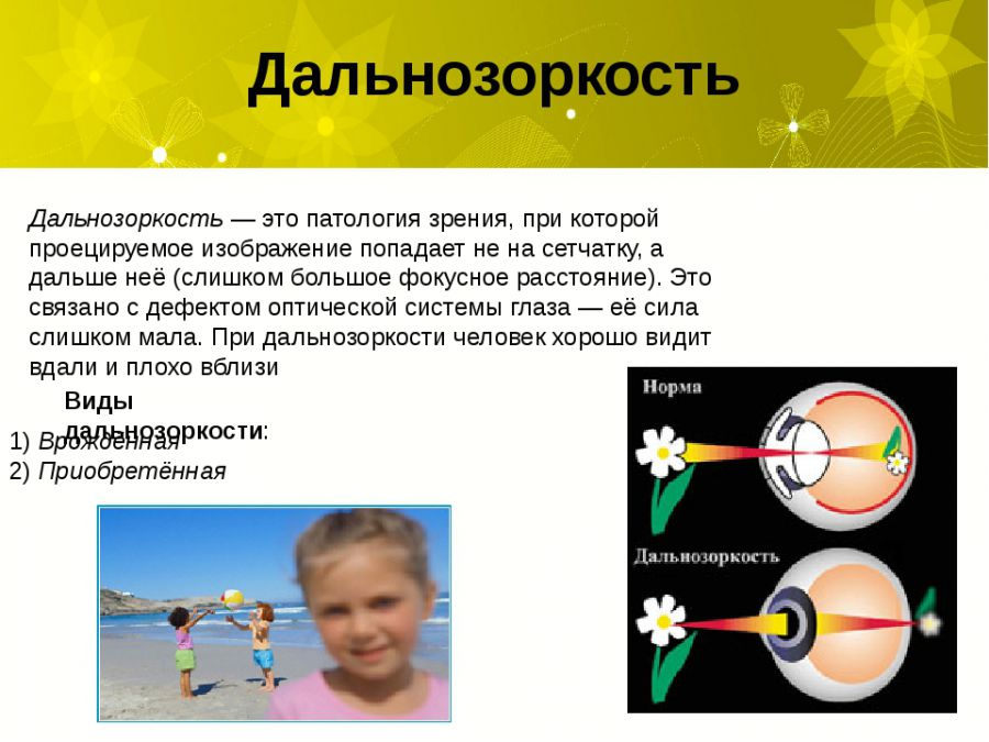 Дальнозоркость у детей 1 года и до, объяснение доктора комаровского, как лечить