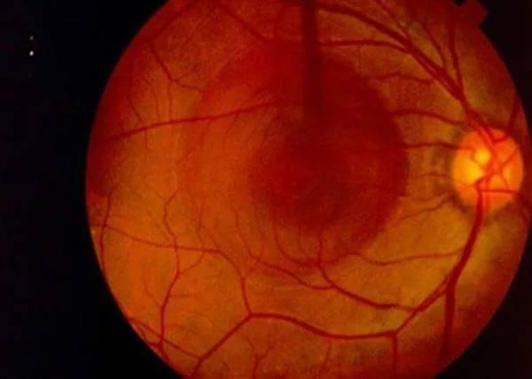 Хориоретинит глаз: что это такое, симптомы и лечение