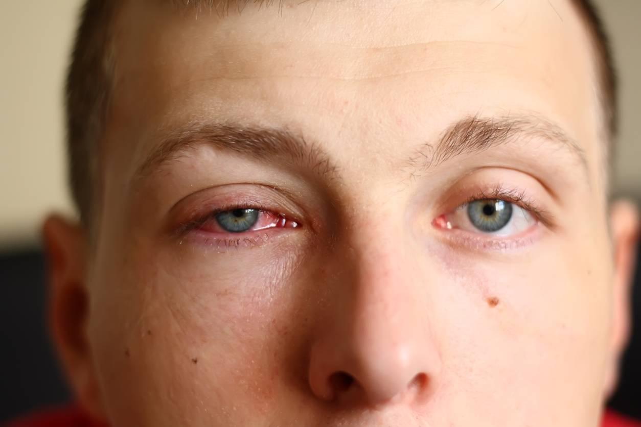 Опасный симптом – болит над бровью справа. какие заболевания могут вызывать боль брови над глазом?