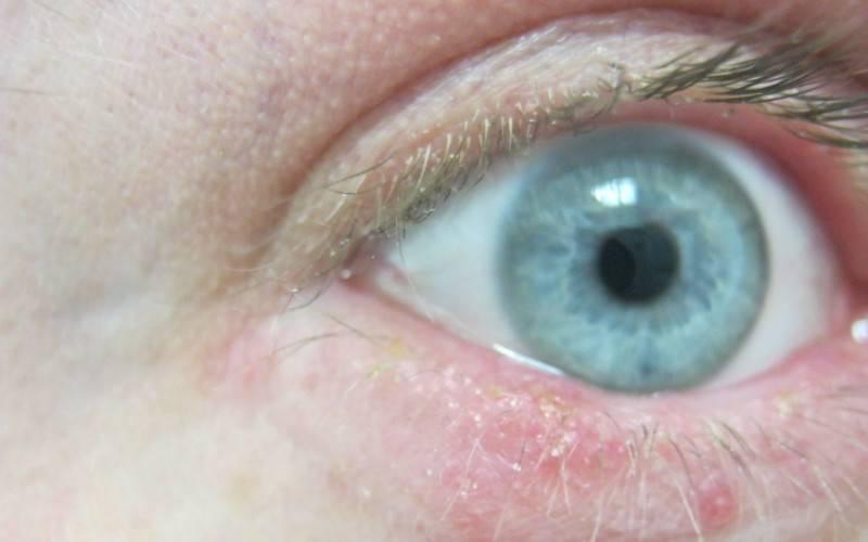 Демодекоз - лечение на глазах: чем лечить у человека, симптомы и лечение, капли