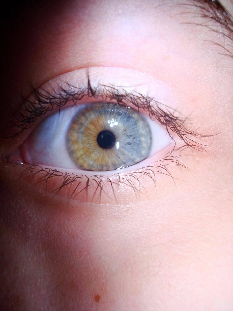 Что такое гетерохромия - узнай что такое