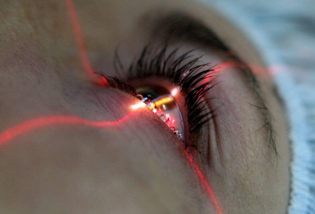 Садится ли зрение после лазерной коррекции? ухудшение зрения после лазерной коррекции причины