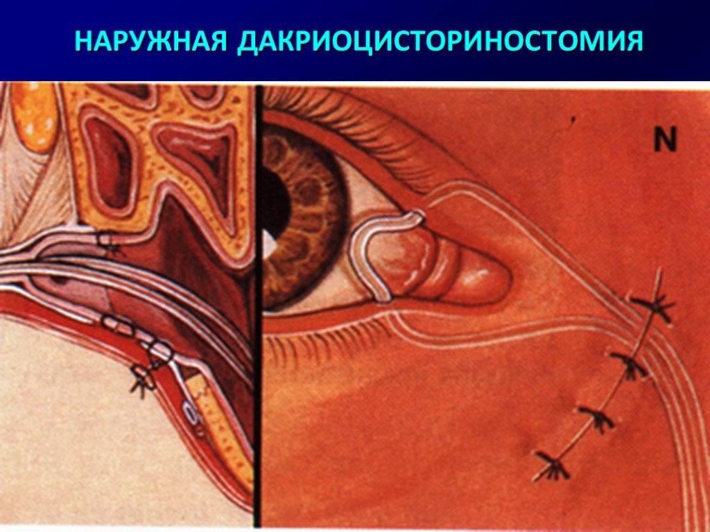 Какие делают операции при астигматизме и особенности восстановления после них - медицинский справочник medana-st.ru