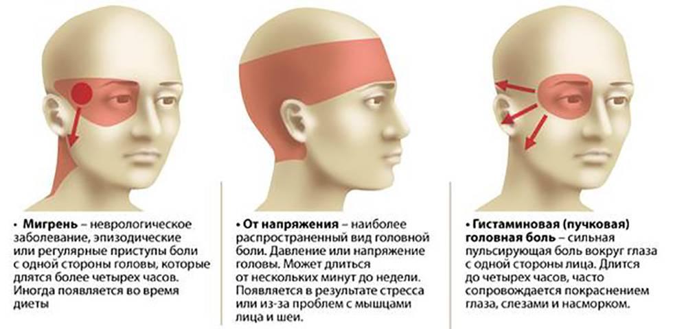 Болит левый висок: причины, почему пульсирует, что делать, отдает глаз