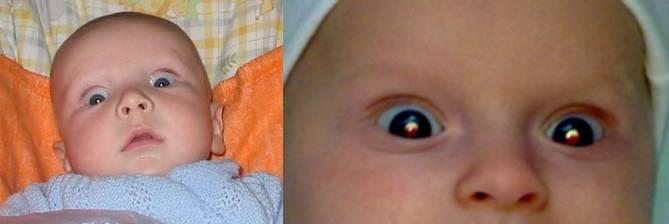 Нистагм у детей: симптомы и лечение — глаза эксперт