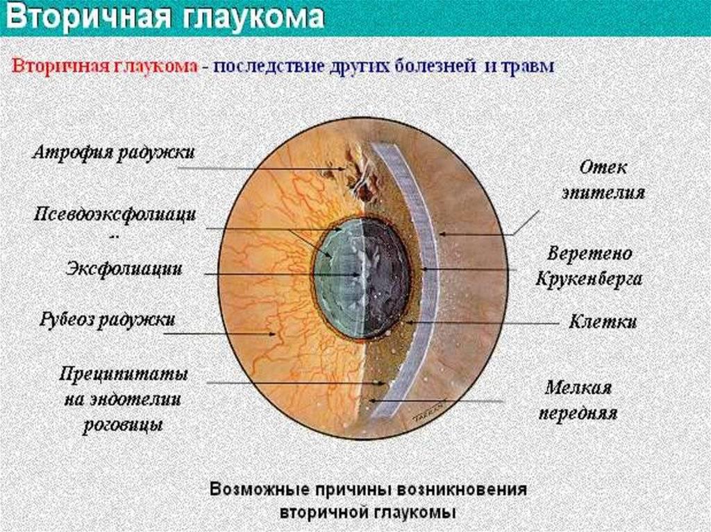 Глаукома: причины и проявления - статьи о глазных болезнях