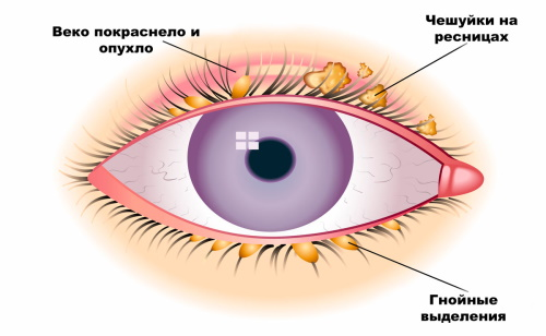 Почему чешутся глаза, что делать и как лечить надоедливый симптом?