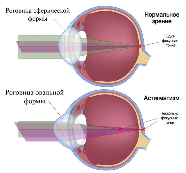 Астигматическая линза - можно ли при астигматизме носить контактные