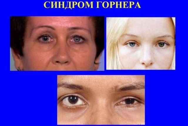 Миоз глаза, симптомы, лечение, причины - народная медицина