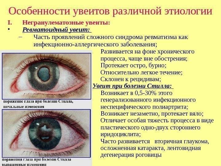 Увеит: фото, причины, признаки, лечение увеита