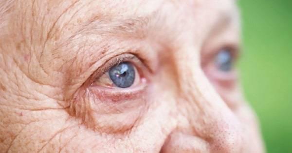 Возрастная катаракта (старческая) — причины, симптомы и лечения (фото)