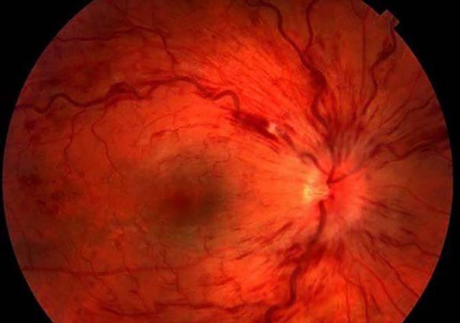 Тромбоз сетчатки глаза: причины, симптомы, лечение, восстановительный период и советы офтальмолога