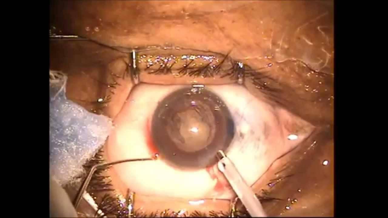 Как избежать осложнений? отслоение сетчатки глаза после операции: что нельзя делать