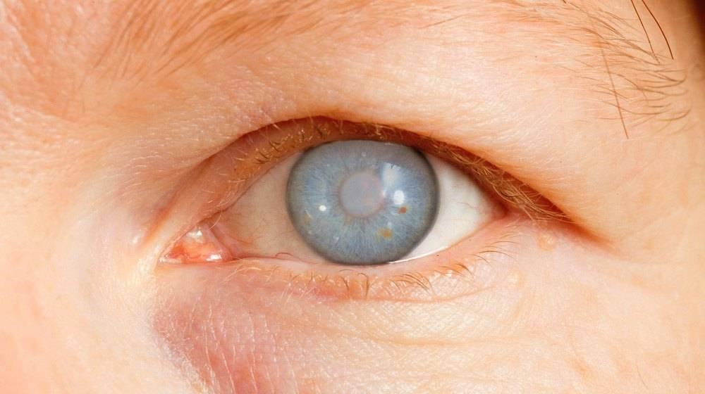 5 болезней, которые могут привести к слепоте