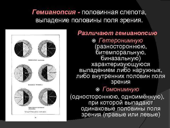 Гемианопсия (выпадение полей зрения): причины, симптомы, лечение, виды (гомонимная, битемпоральная, контралатеральная, биназальная, правосторонняя, левостороння, квадратная, билатеральная), при инсульте