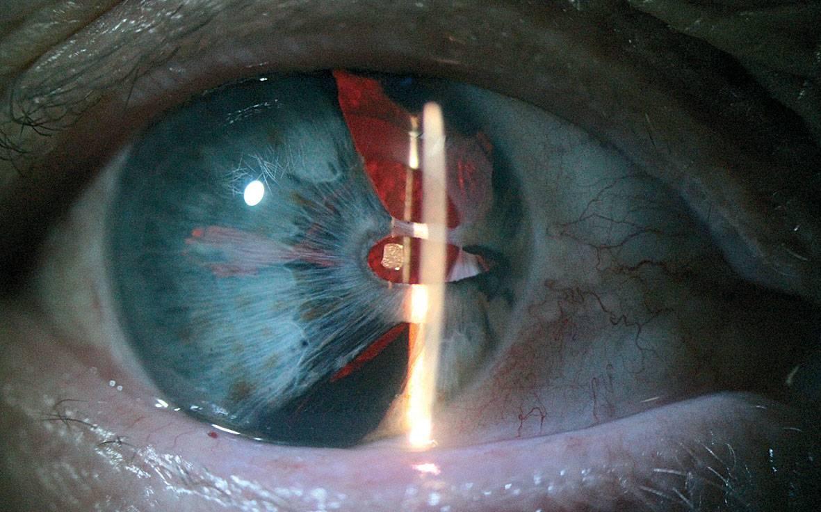 Артифакия глаза: разновидности иол, возможные недостатки метода