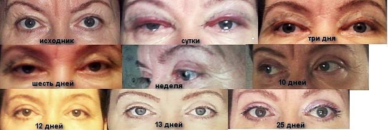 За сколько дней проходит синяк под глазом — красивое лицо