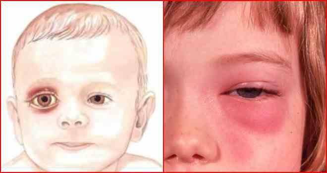 Локализация флегмоны дна полости рта и какими методами проводят ее лечение?