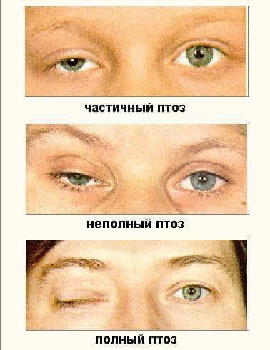 Птоз, опущение верхнего века: причины и лечение, операция