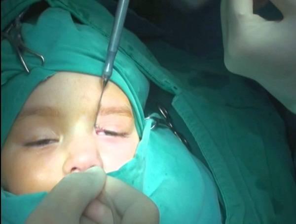 Зондирование слезного канала у новорожденных. что это, как проводится, последствия операции