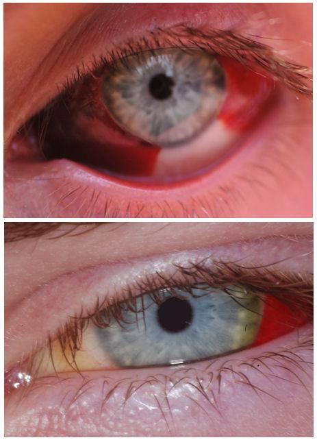 Как убрать кровоизлияние в глазу | медик03