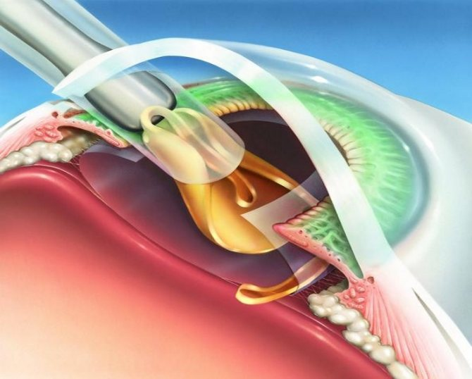 Катаракта при близорукости: необходима ли операция при повреждении хрусталика