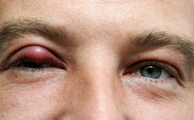 Ячмень на глазу – причины, симптомы и лечение в домашних условиях