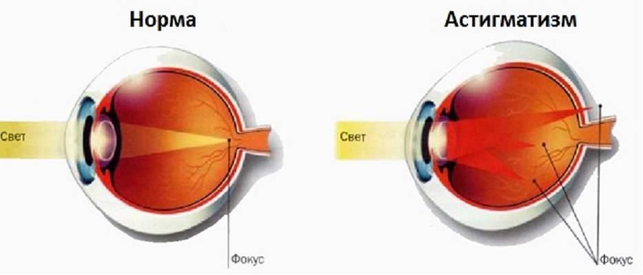 Дальнозоркость или по-научному гиперметропия - симптомы, диагностика, лечение