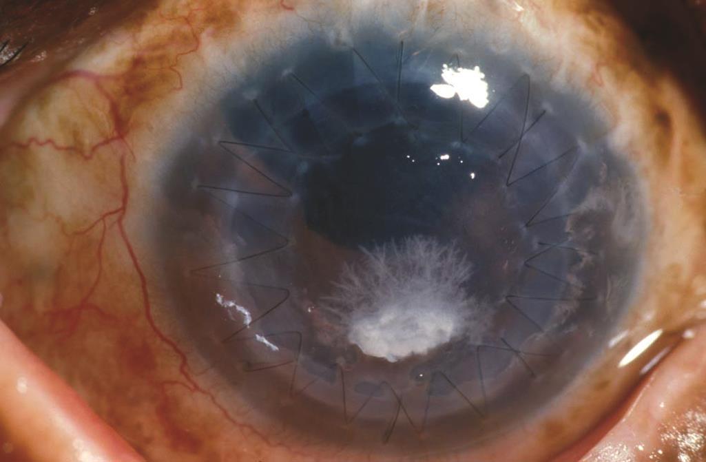 Что такое кератопатия глаза и как её лечить oculistic.ru что такое кератопатия глаза и как её лечить