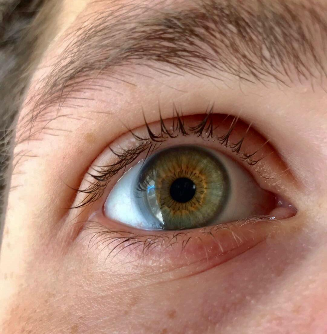 Разный цвет глаз (гетерохромия глаза), что это такое, симптомы и лечение