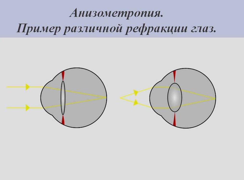 """Анизометропия: симптомы и причины - """"здоровое око"""""""