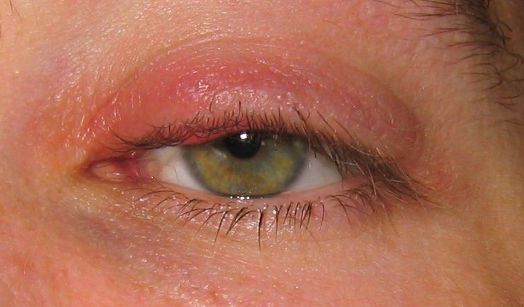 Трещины на внешних уголках глаз. боль в уголках глаз