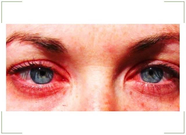 Кератоконъюнктивит у детей и взрослых, лекарста и методы лечения
