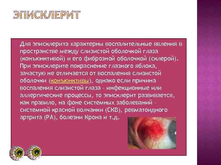 Виды эписклерита у взрослых и детей