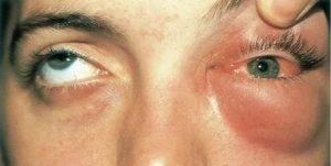 Флегмона дна полости рта: фото, симптомы и лечение