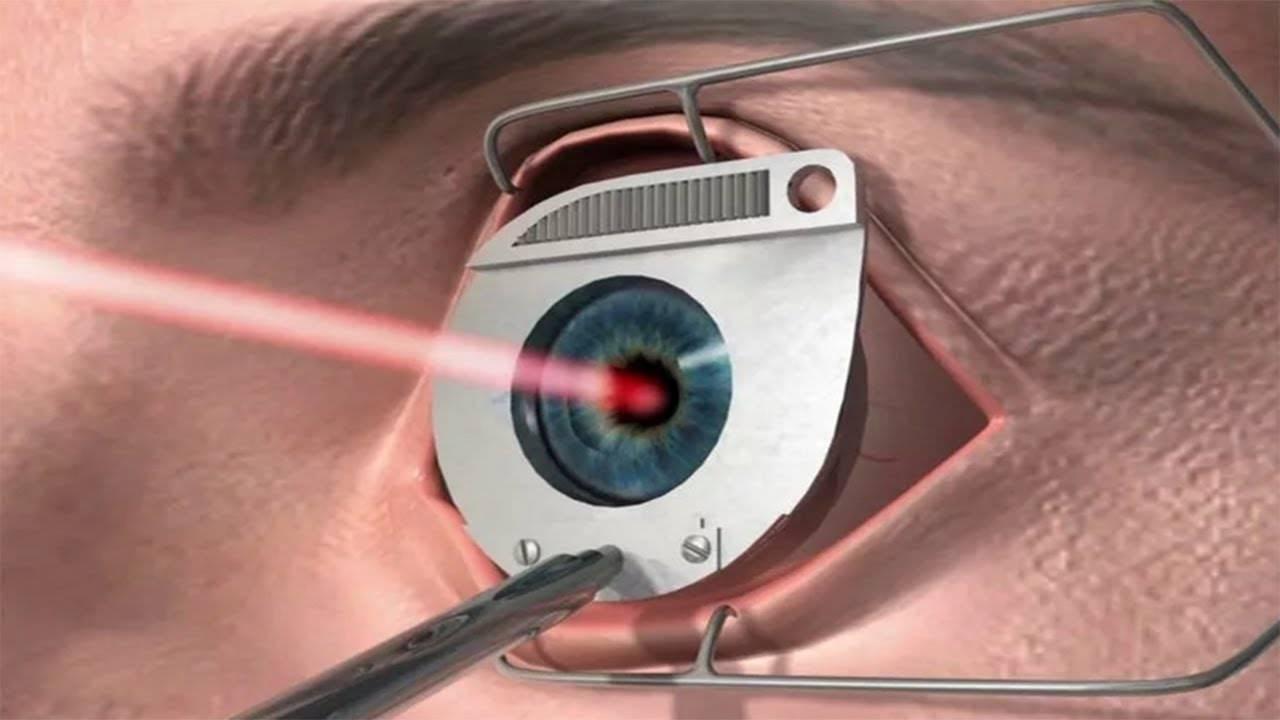Почему падает зрение после 40 лет: лазерная коррекция, возрастные изменения