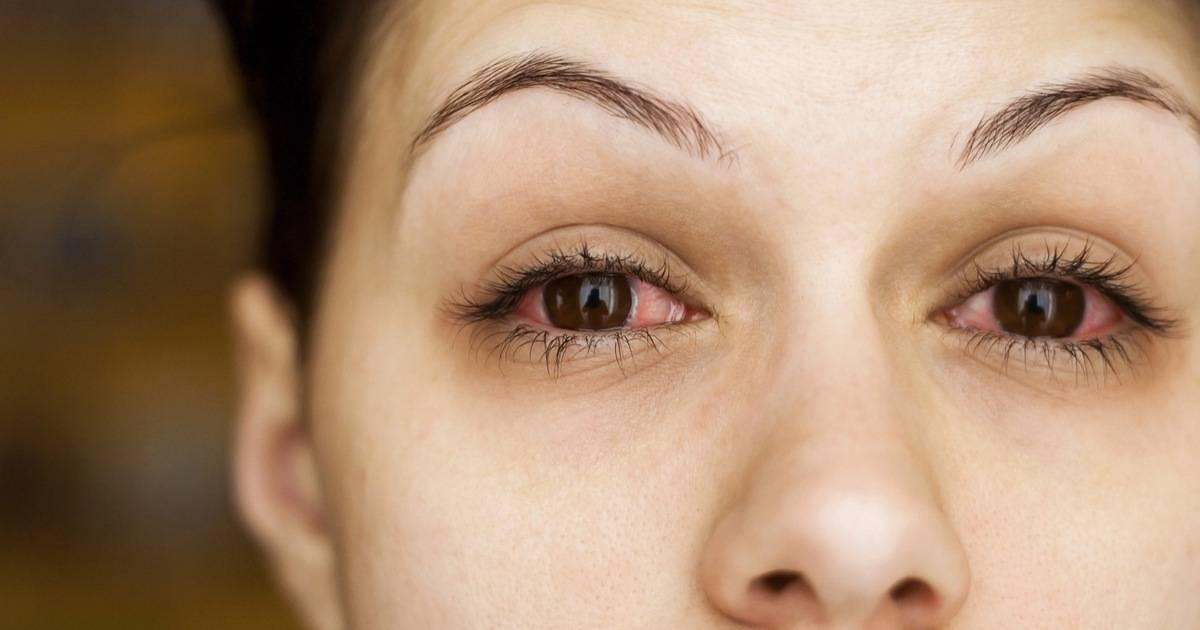 Потемнение в глазах: почему может темнеть у здоровых людей, патологические причины