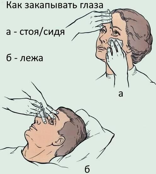 Как правильно закапывать капли в глаза? пошаговая инструкция