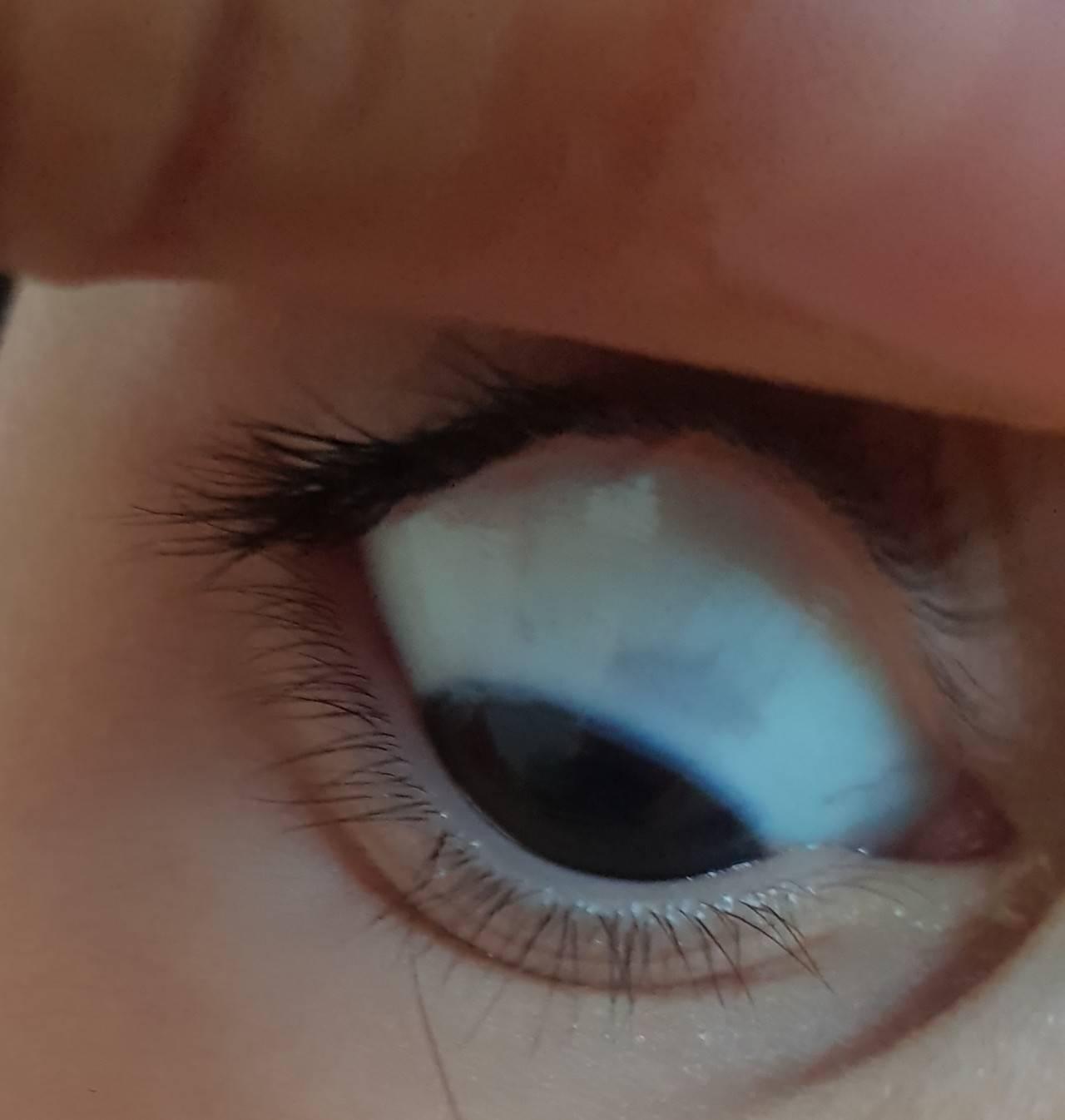 Почему у новорожденного серые белки глаз