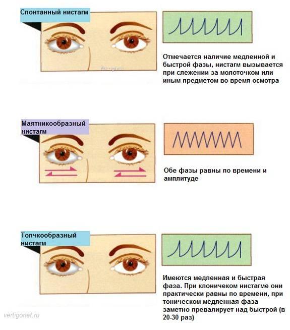 Нистагм | симптомы и лечение нистагма | компетентно о здоровье на ilive