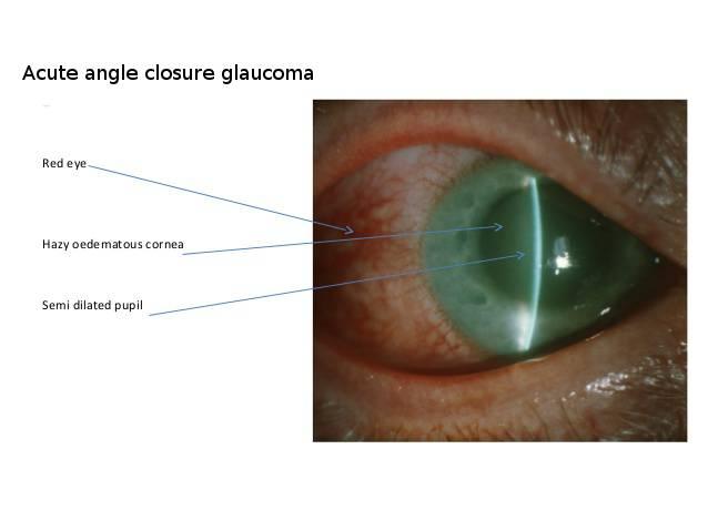 Открытоугольная глаукома: что это такое, причины заболевания, симптомы 1,2, 2 а, 3 степени, лечение первичной формы патологии