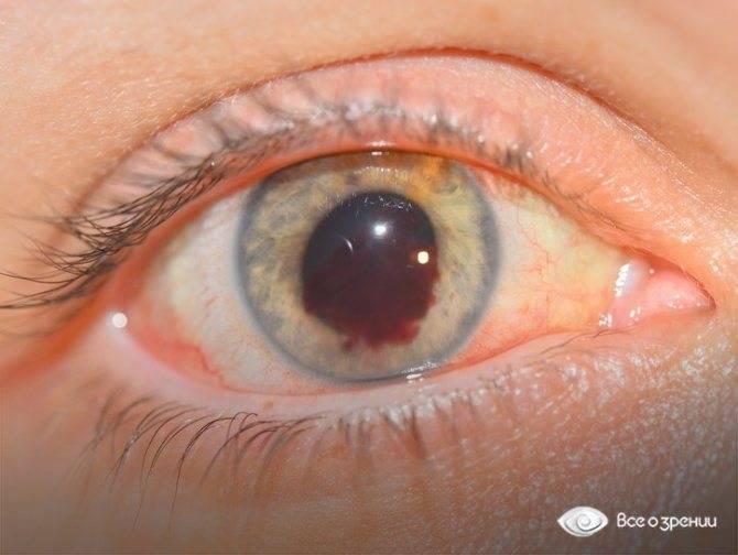 Кровоизлияние в глаз: причины и лечение, что делать, субконъюнктивальное, кровоточат, гемофтальм, в стекловидное тело, глазные капли, сетчатку, почему идет кровь, склеру, частичный