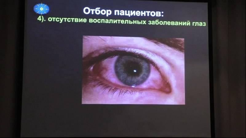 Мушки в глазах лечение лазером