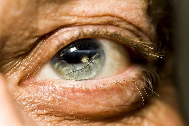 Ушиб глазного яблока (глаза): первая помощь, лечение, последствия | мрикрнц.рф