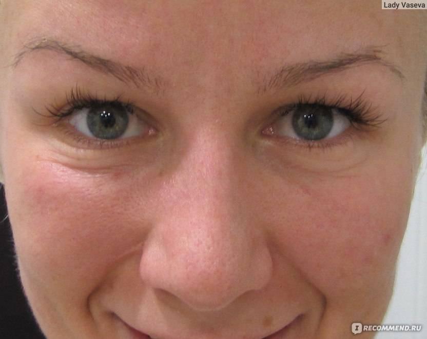Мешки под глазами. причины патологии. как убрать мешки под глазами в домашних условиях? :: polismed.com